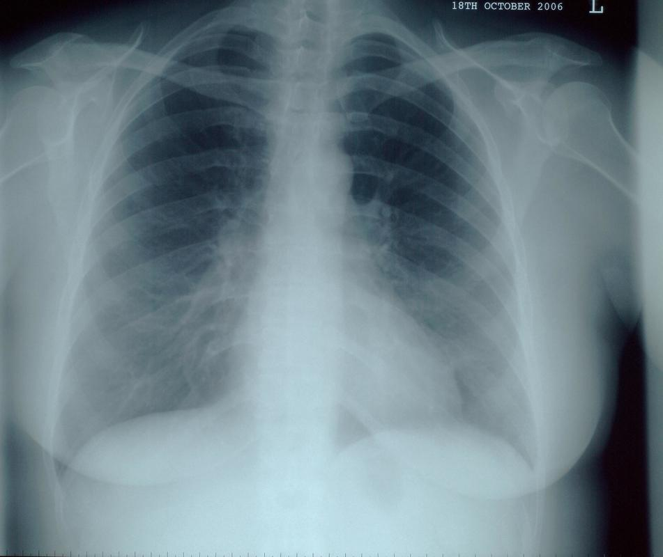 how to read chest x ray