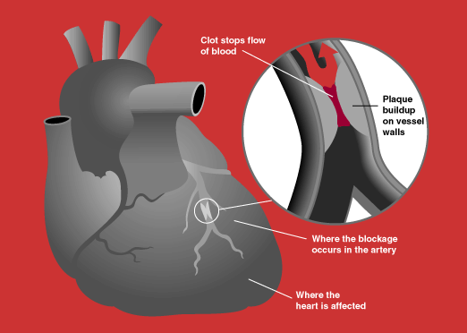 Heart attack diagram science learning hub ccuart Choice Image