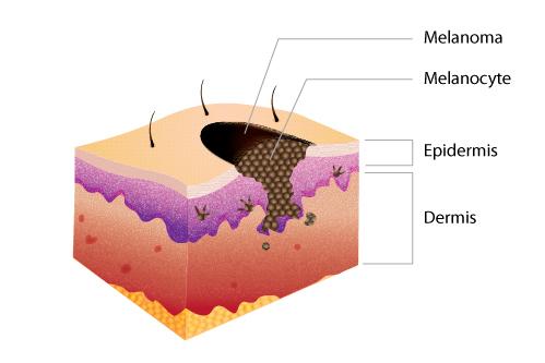 Melanoma Science Learning Hub