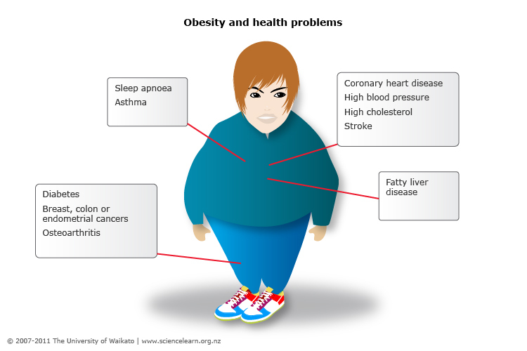 the problem of obesity in our If you are obese, or have one or more risk factors for obesity, our physicians can help in cases of severe obesity, surgery may be an option  joint problems .