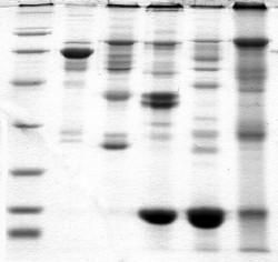 Protein Electrophoresis — Science Learning Hub
